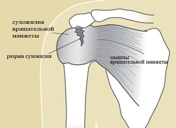 Повреждение ротаторной манжеты правого плечевого сустава